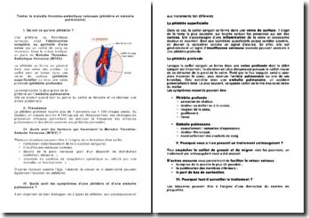 Traiter la maladie thrombo-embolique veineuse (phlébite et embolie pulmonaire)