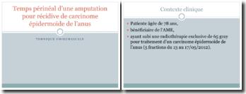 Temps périnéal d'une amputation pour récidive de carcinome épidermoïde de l'anus